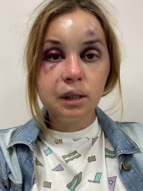 Безбилетник избил телеведущую в поезде Мариуполь-Киев и попытался изнасиловать