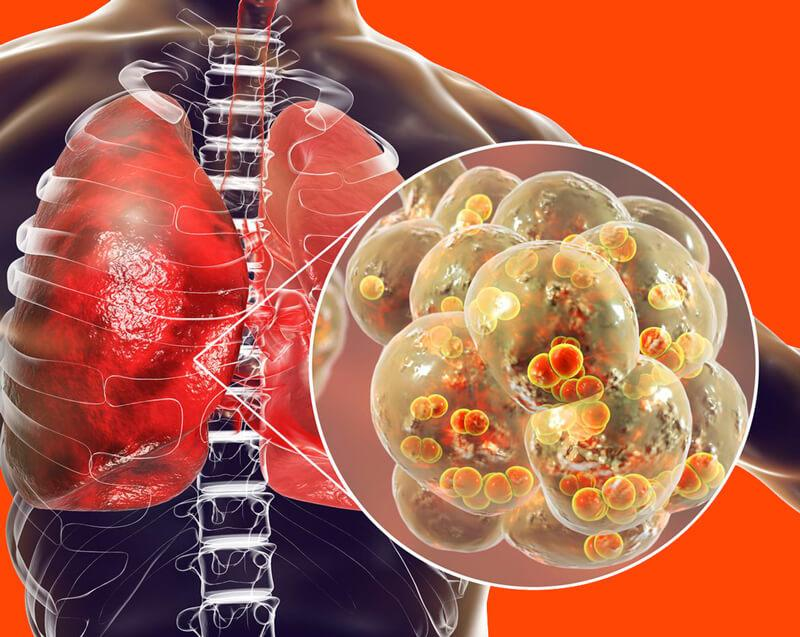 7 признаков ковидной пневмонии
