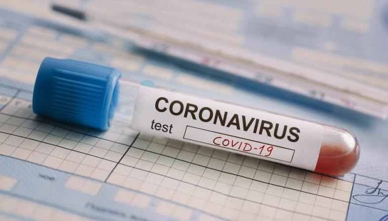 От посетителей концертов все-таки будут требовать тест на коронавирус