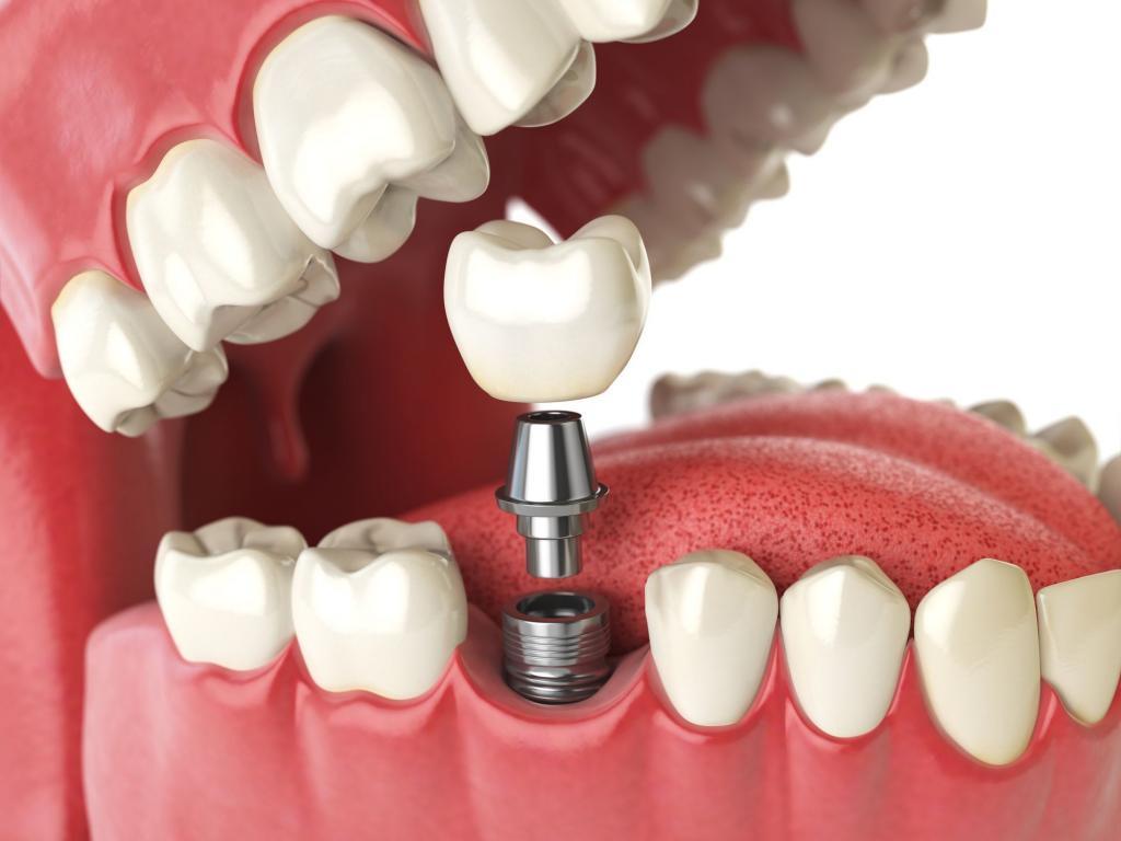 Рейтинг имплантов зубов по производителям и приживаемости